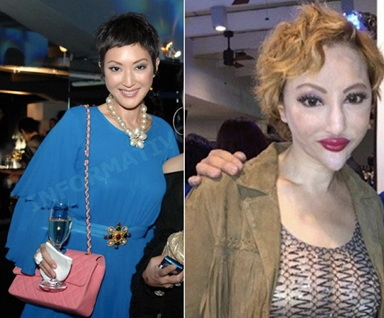 fanny sieh plastic surgery