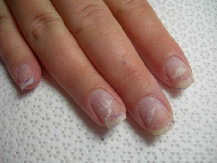 Image result for soft peeling nails