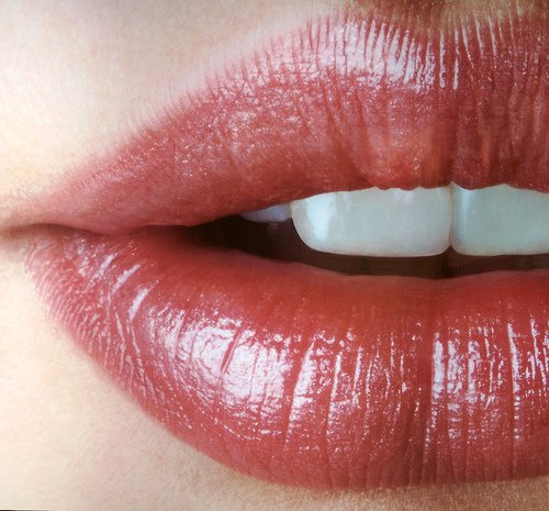 FDA-Approved Juvederm Ultra XC Fills Lips and Lines for 1