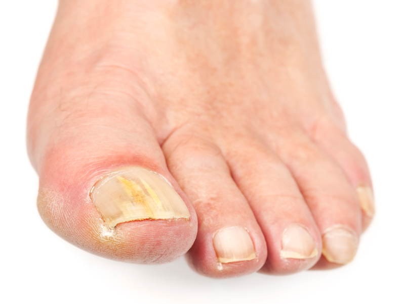 What a White Toenail Fungus Means (and how to treat it)   The Luxury ...