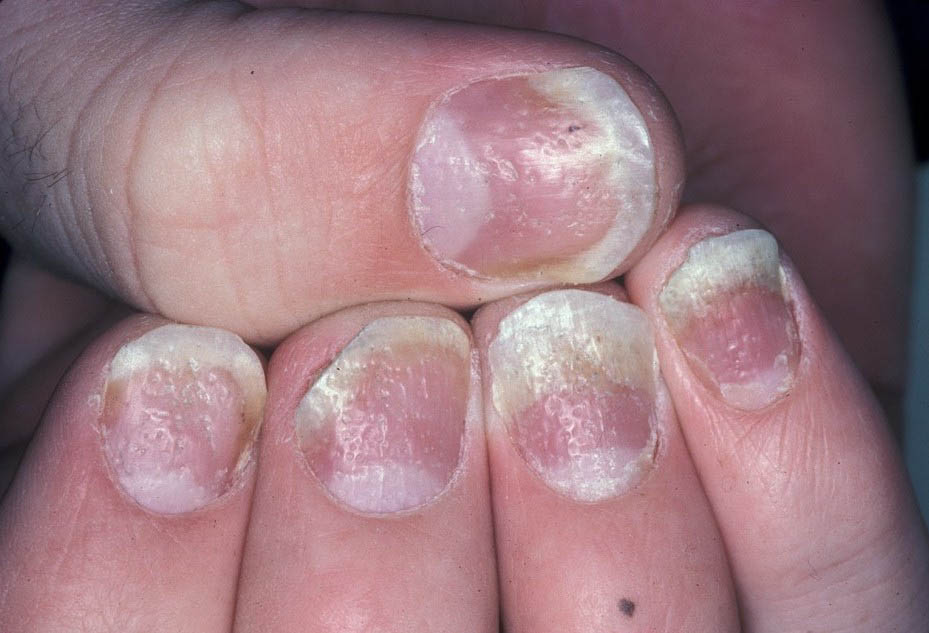 Nail Psoriasis is a Thing: Here\'s How to Deal | The Luxury Spot