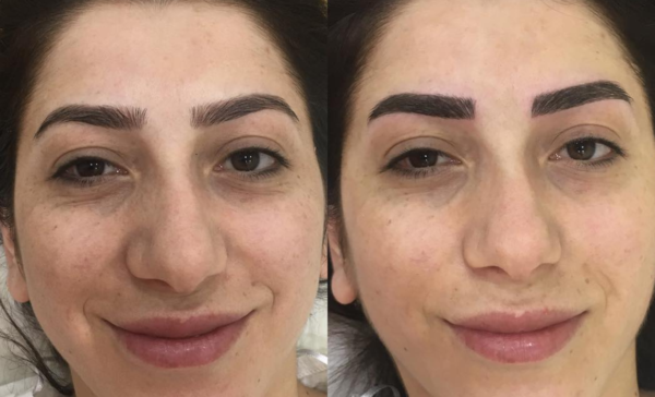 No, Jewish Girls Can't Try Microblading | The Luxury Spot
