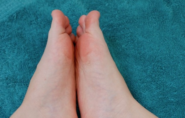 foot acne