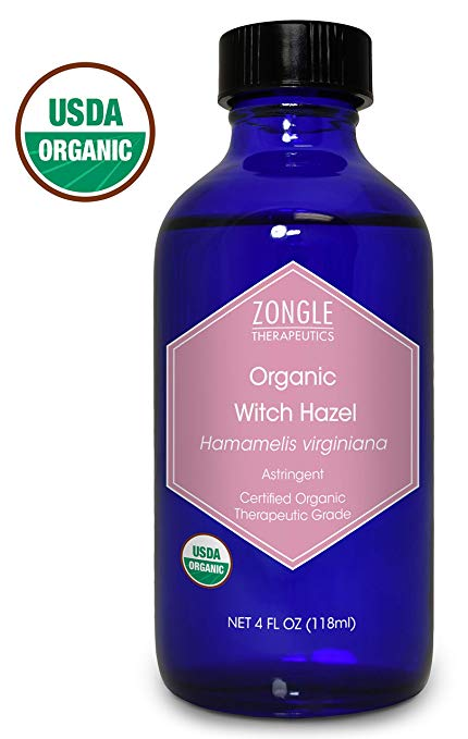 witch hazel for dandruff