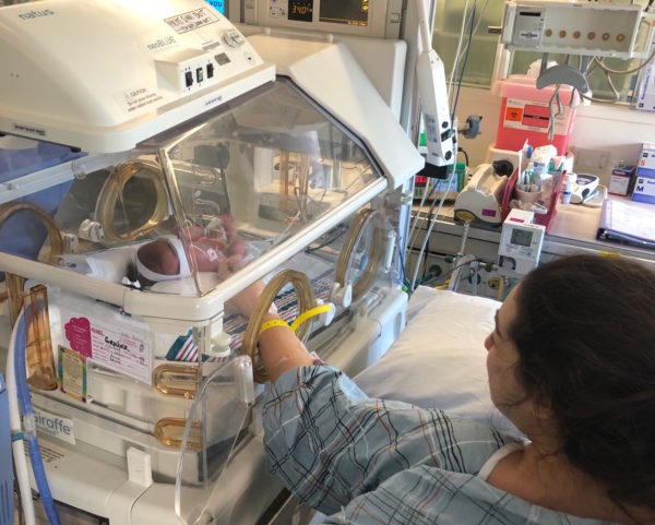 placenta accreta preemie in the nicu